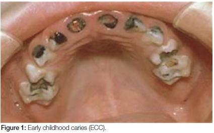 Carie della prima infanzia (Early Childhood Caries, ECC)